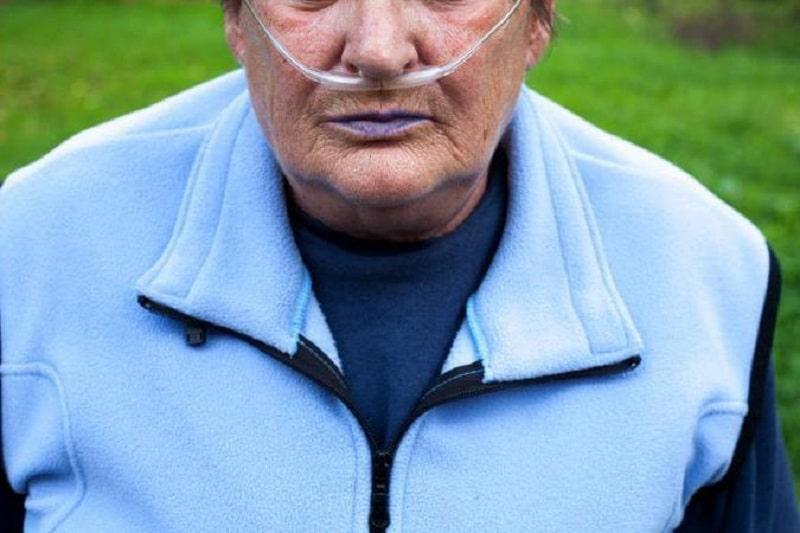 Lèvres bleues : causes, photos et traitements